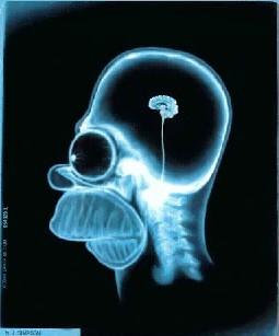 Cerebros de izquierdas y de derechas. La ciencia muestra la actividad neuronal de liberales y conservadores